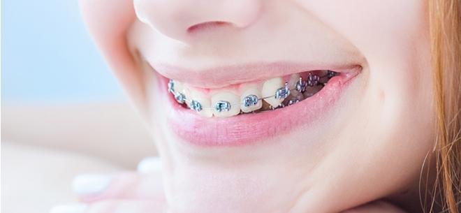 Имплантация зубов в астане цены
